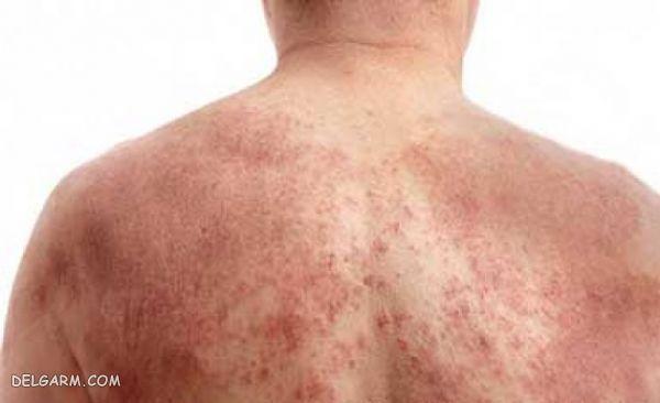 / بیماری پوستی / اختلالات مختلف پوستی