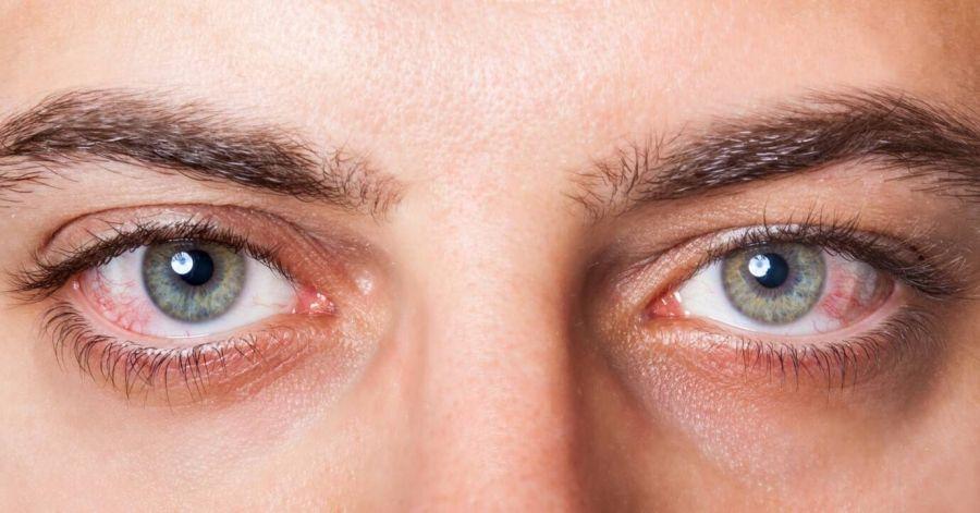 سکته چشمی چیست ؟ بررسی علل،علائم و درمان این عارضه