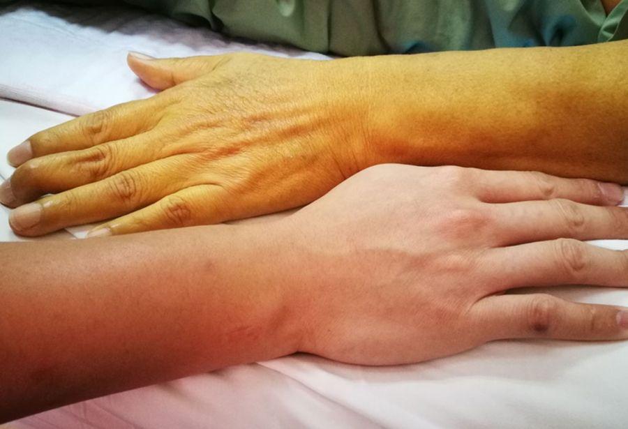 علت و علائم یرقان یا زردی در بزرگسالان چیست و چگونه درمان میشود ؟