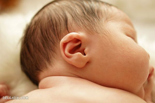 بدشکلی گوش نوزاد