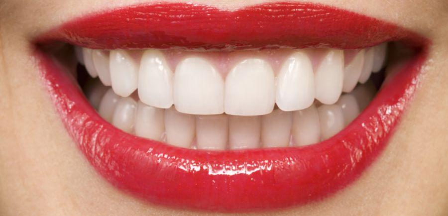 معرفی کامل اسامی دندان ها از ۱ تا ۳۲ همراه با تصویر