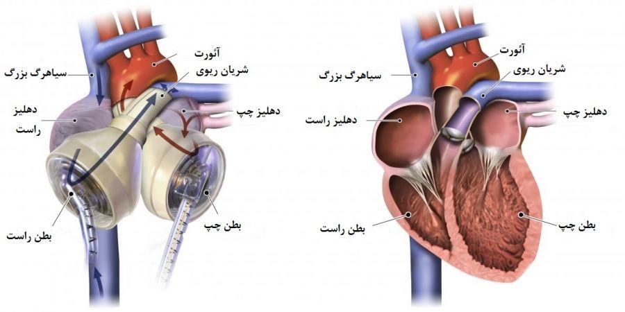 پیوند قلب مصنوعی : قلب مصنوعی چگونه کار میکند ؟