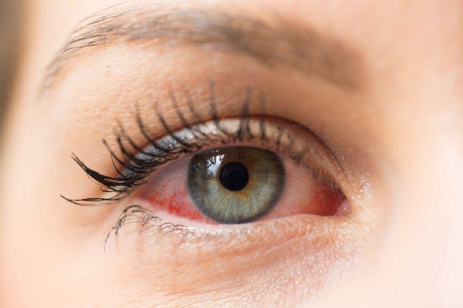 هایفما چیست ؟ راههای تشخیص و درمان هایفما کدامند ؟