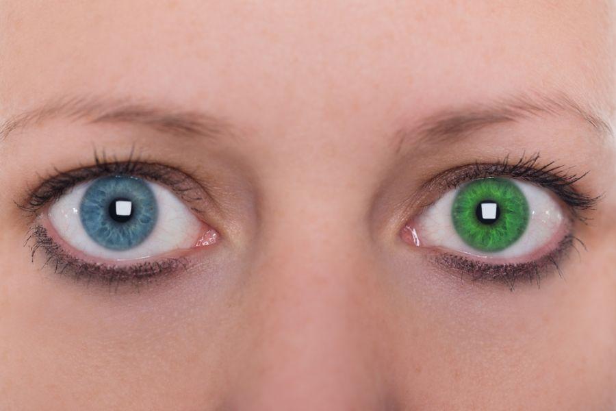 ۱۰ دلیل اصلی که باعث تغییر رنگ چشم میشود کدامند ؟