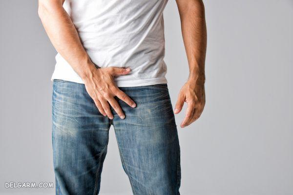 دانه های سفید روی اندام تناسلی مردان