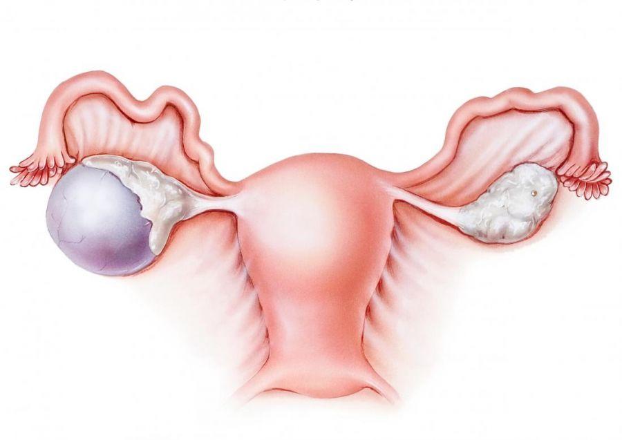 کیست هموراژیک (خونی) تخمدان چیست و چه تاثیری در بارداری دارد ؟