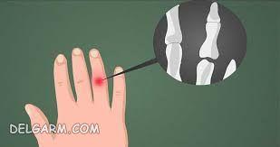 علائم شکستگی انگشت دست