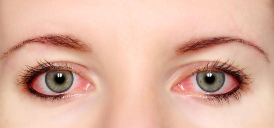 علت و راههای پیشگیری از قرمز شدن چشم چیست ؟