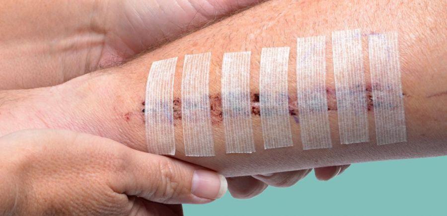 راه حل هایی برای خوب شدن سریع زخم ها
