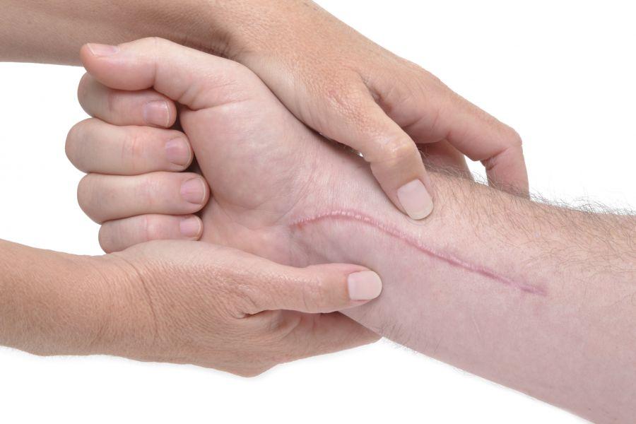 ۱۵ راهکار اساسی برای درمان جای بخیه با طب سنتی