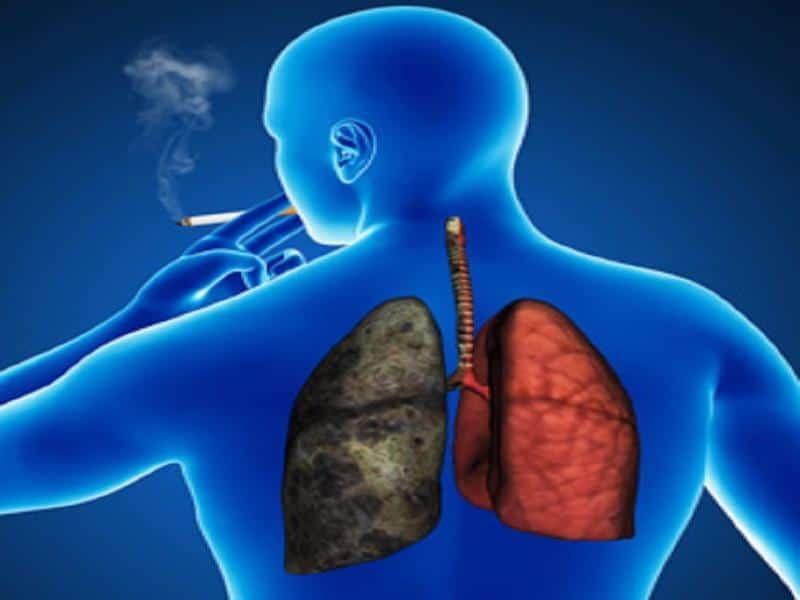 آیا ریه ی افراد سیگاری پس از ترک بهبود می یابد ؟