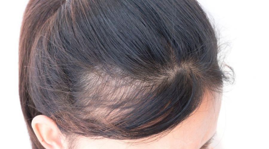 چگونه از پیاز برای درمان طاسی سر و ریزش مو استفاده کنم ؟