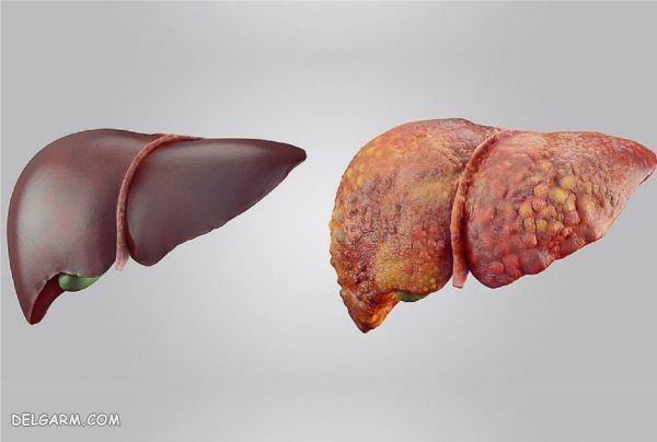 درمان سرطان کبد / متاستاز کبد چیست