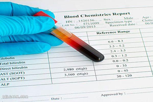 AST وALT  / کبد چرب در آزمایش خون چیست / بالا بودن alt در آزمایش خون / خواندن آزمایش کبد چرب /  آیا با آزمایش خون کبد چرب مشخص میشود / در آزمایش خون