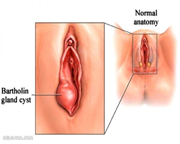 کیست واژن چیست