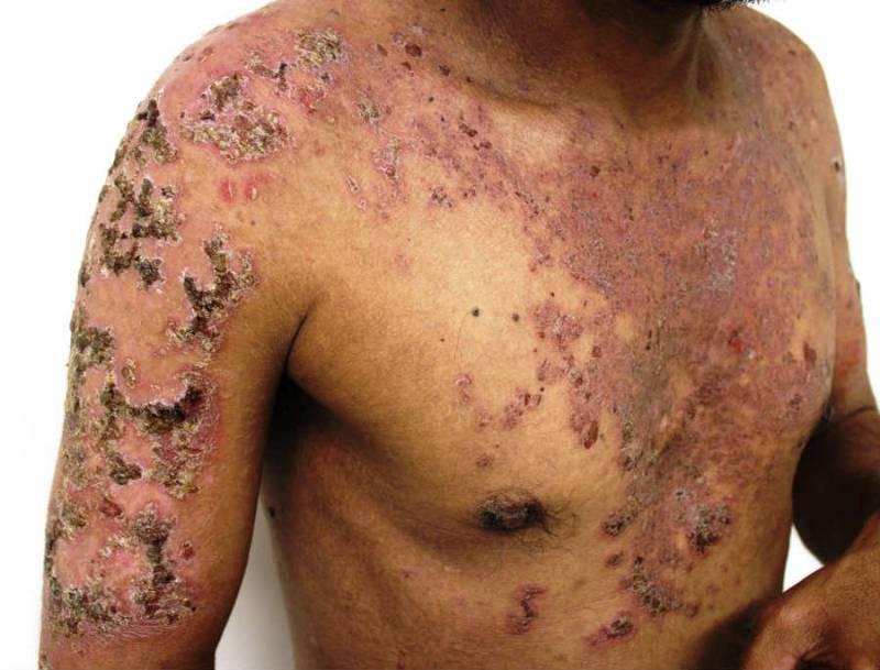 پمفیگوس ولگاریس بدترین بیماری پوستی در کشور