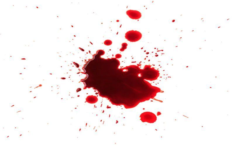 دیدن خون در خواب چه تعبیر و نشانه ای دارد ؟