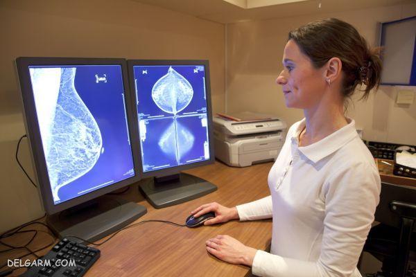 رادیولوژی در بارداری