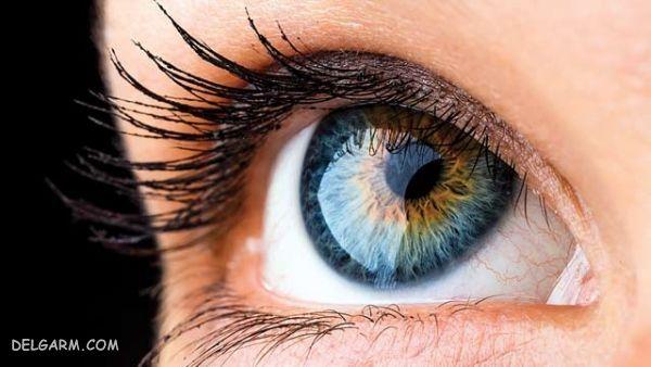 سلامتی چشم