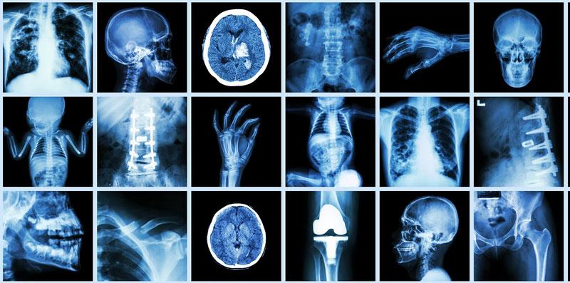 آدرس و تلفن مراکز رادیولوژی و سونوگرافی در شهر بیرجند