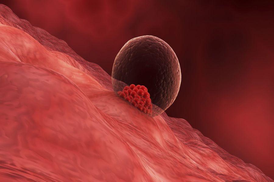 علائم لانه گذاری جنین و تفاوت خونریزی لانه گزینی با خونریزی پریودی (قاعدگی)