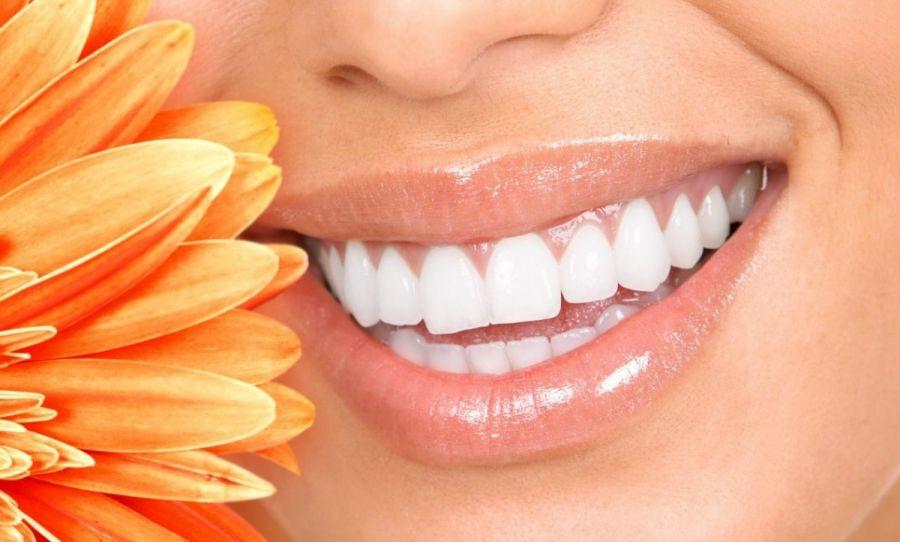 لاک یا قلم سفید کننده دندان چیست و چه مضراتی دارد؟