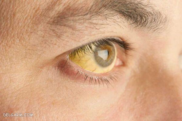 علائم بیماری فیبروز کبد