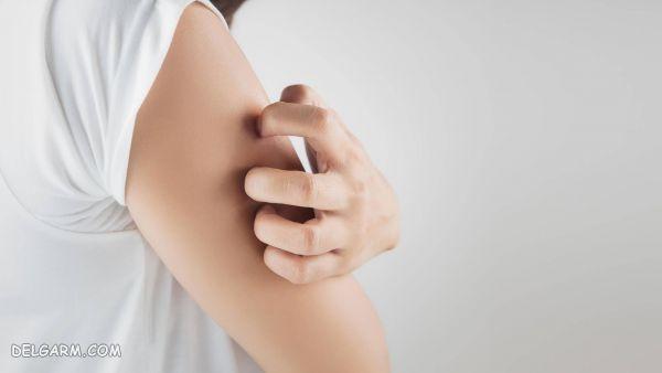 خارش پوست / خارش یک نقطه از بدن / خارش یک قسمت از بدن / خارش بازو / خارش نقاط مختلف بدن / خارش