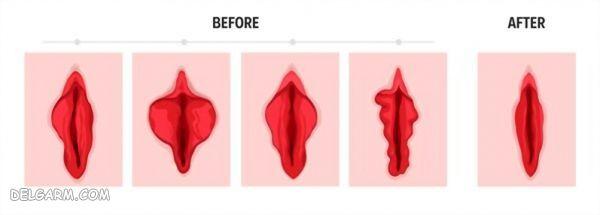 جوانسازی واژن شامل لابیاپلاستی و تنگ کردن واژن و روشن کردن واژن
