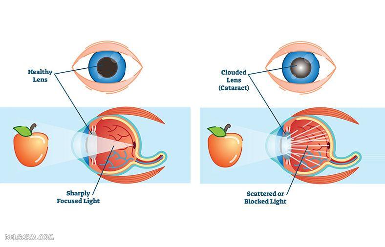 چشم انسان قبل و بعد از ابتلا به آب مروارید