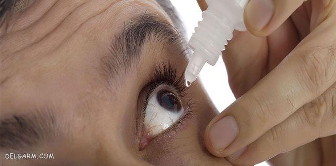 ریختن قطره در چشم بعد از عمل آب مروارید
