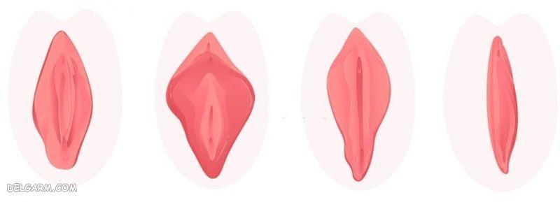 عفونت و التهاب واژن
