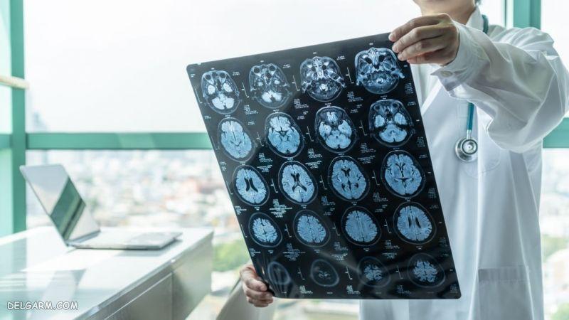 علت بیماری آلزایمر