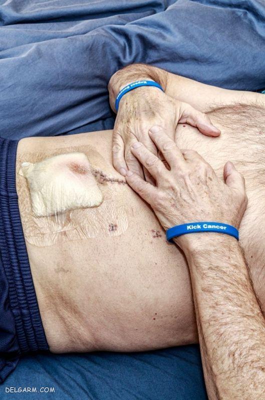 عمل روده بزرگ برای سرطان