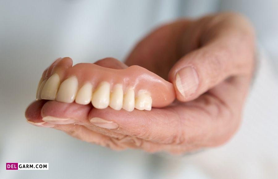 سفید کردن دندان مصنوعی