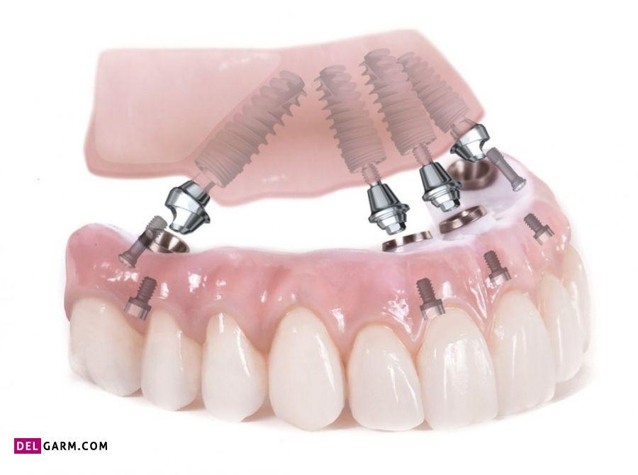 مزایای دندان مصنوعی ثابت