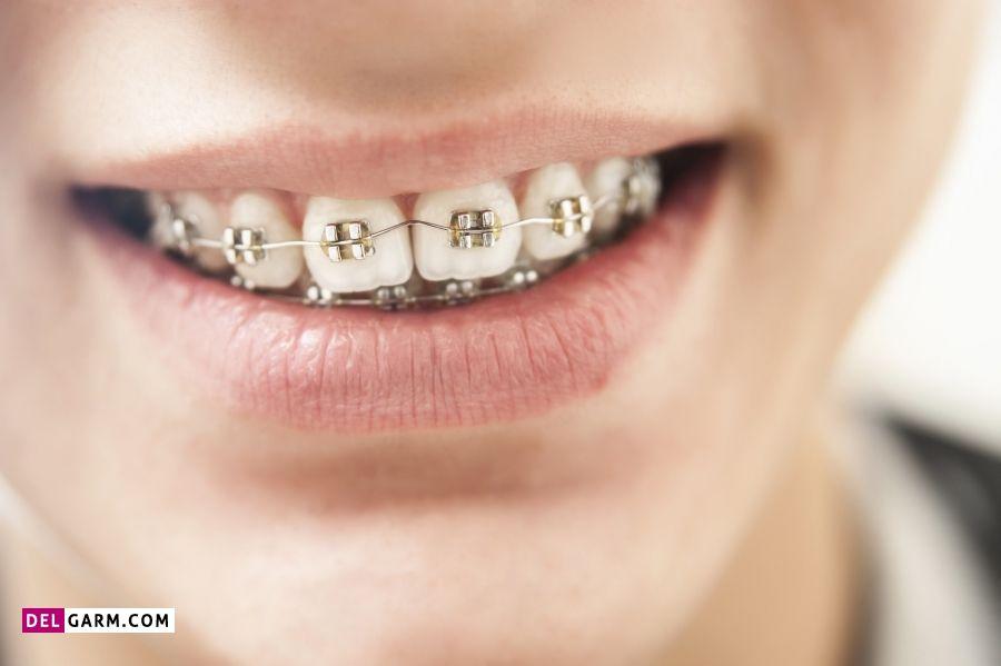 درمان  نامرتبی و شلوغی دندان ها با ارتودنسی