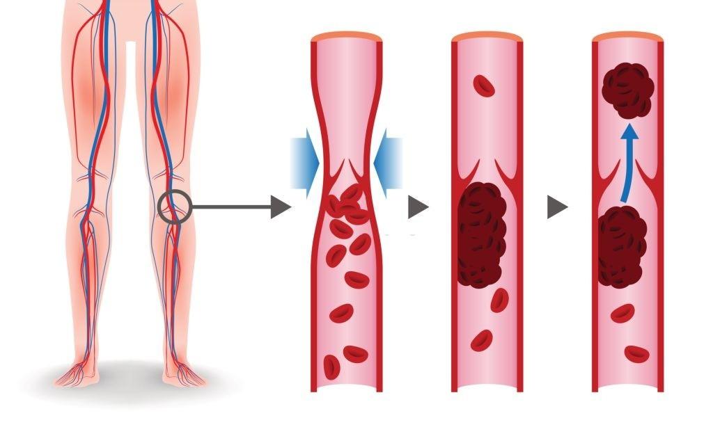 آیا لخته خون قابل درمان است ؟