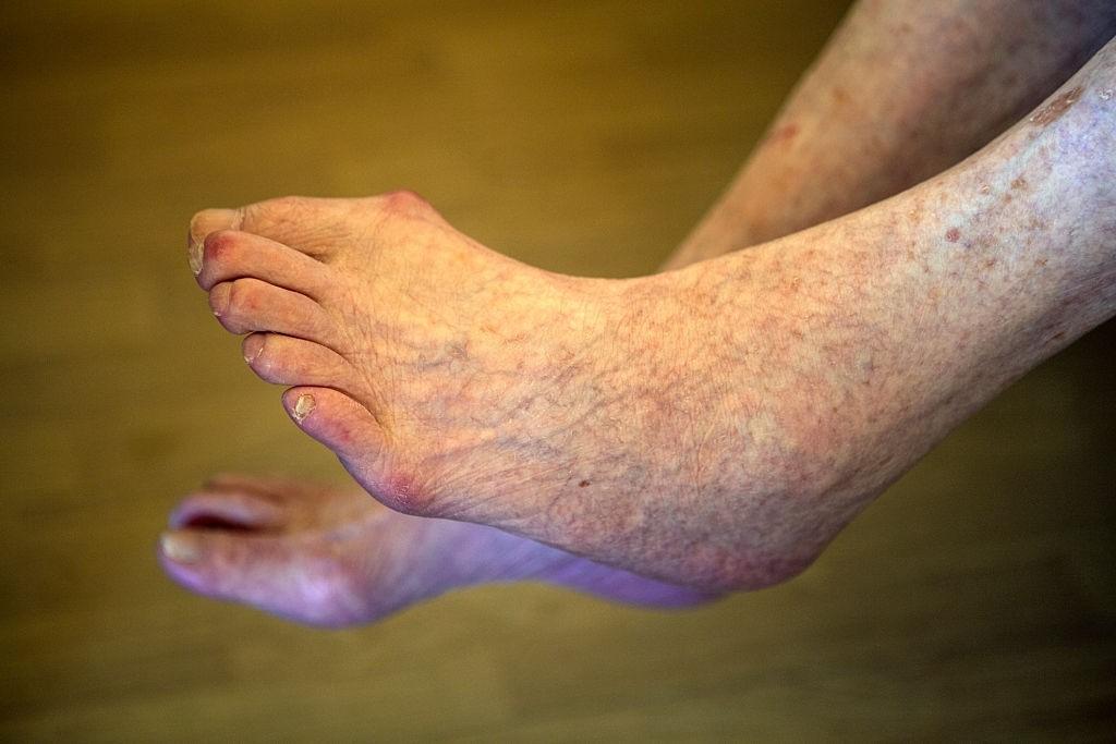 درمان لکه های قهوه ای روی مچ و ساق پا