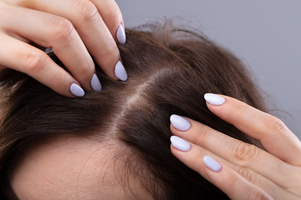 بررسی علل نازک شدن موها و راه های درمان
