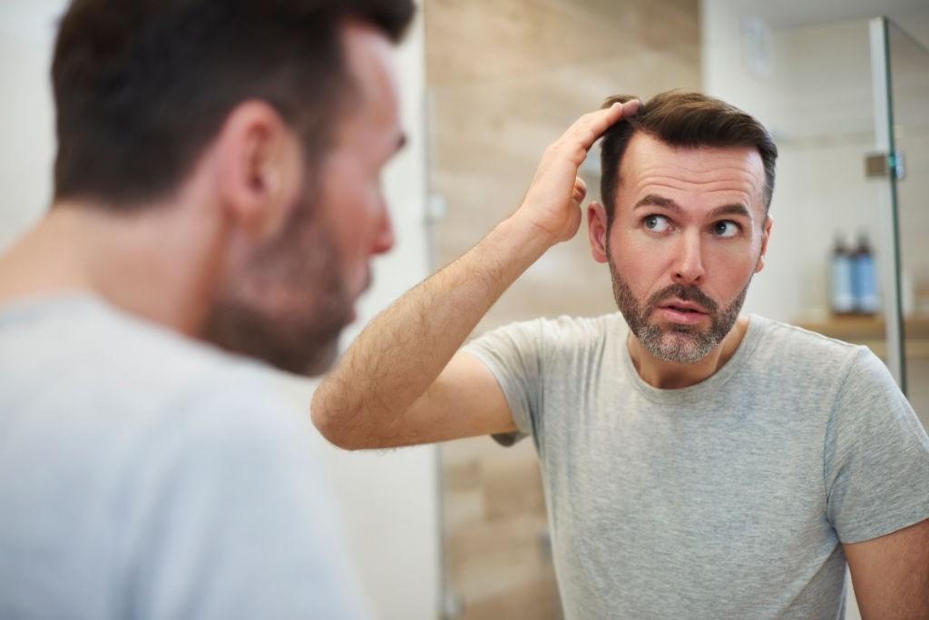 ریزش مو بعد از ابتلا به covid-19 - کرونا