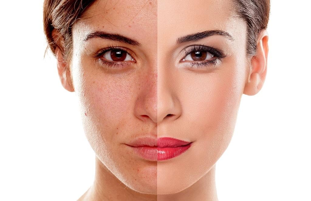 تشخیص پوست ترکیبی