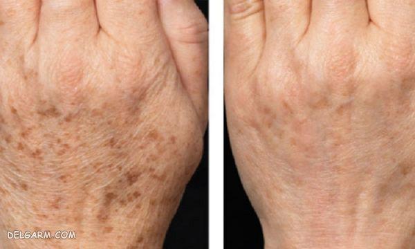 برطرف کردن لک های قهوه ای روی دست