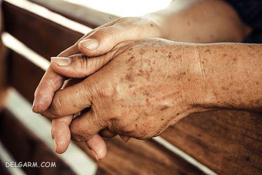 از بین بردن لک های قهوه ای روی دست