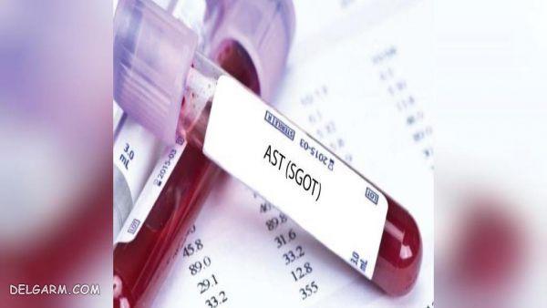 آزمایش خون SGOT