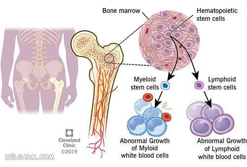 Leukemia |