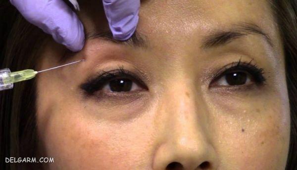 تزریق چربی پشت پلک