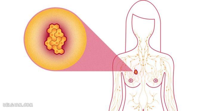 تومور فیلودس