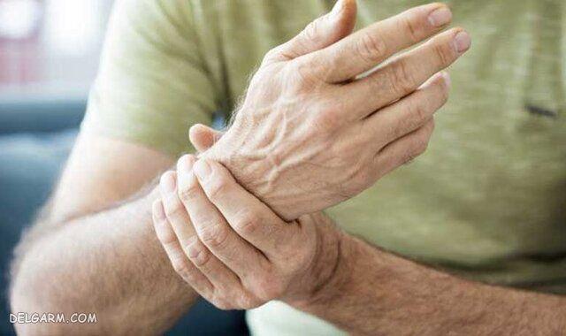 درمان روماتیسم مفصلی با دارو