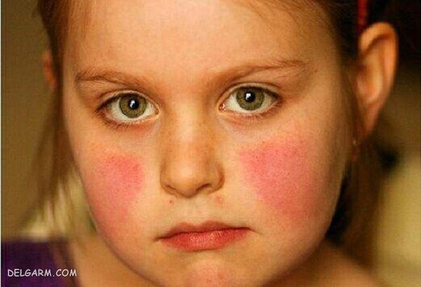 درمان بیماری پنجم/علائم بیماری پنجم